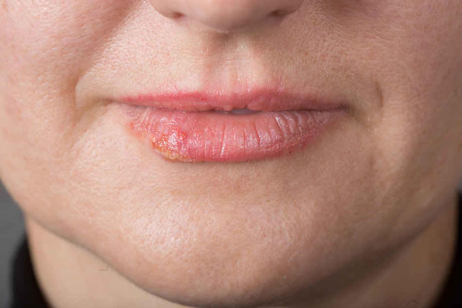Cold Sores and Fever Blisters are Herpes